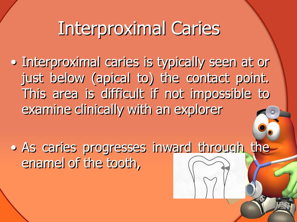 Interproximal Caries Interproximal caries is typically seen at or just below (apical to) the contact point.