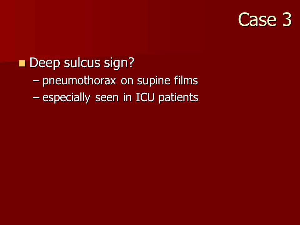 Case 3 Deep sulcus sign. Deep sulcus sign.