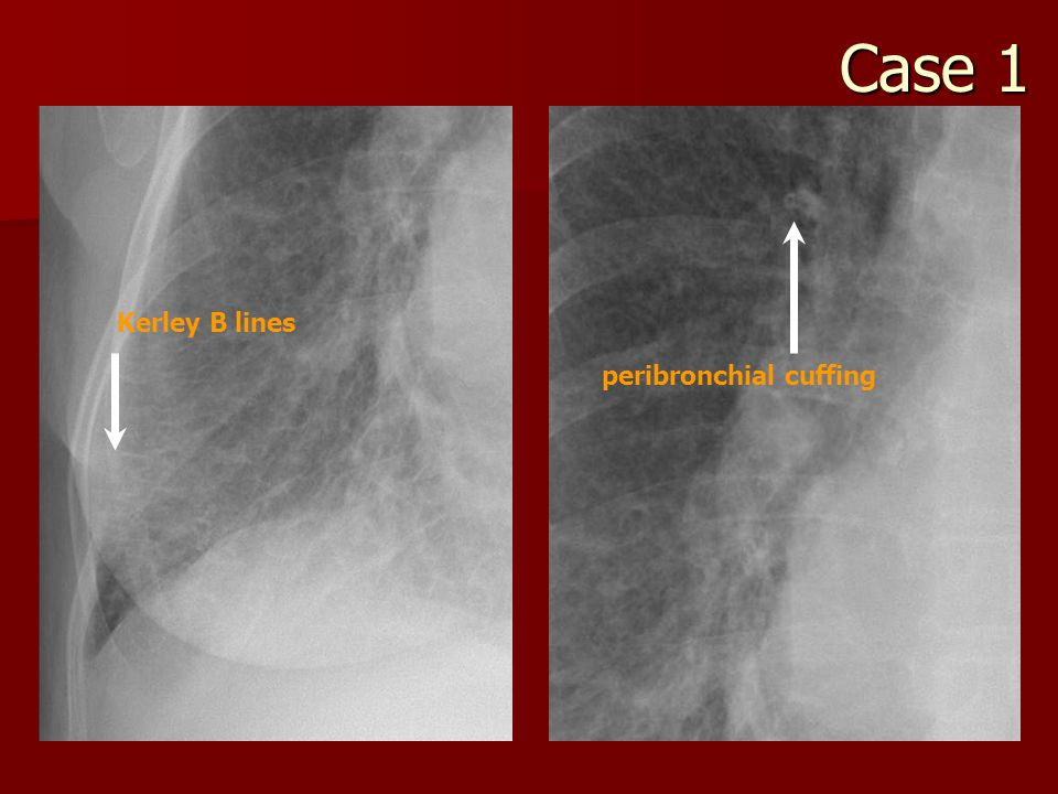peribronchial cuffing Kerley B lines