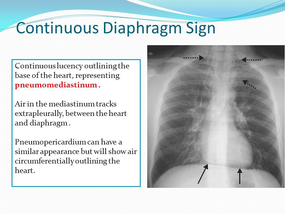 Continuous Diaphragm Sign Continuous lucency outlining the base of the heart, representing pneumomediastinum. Air in the mediastinum tracks extrapleur