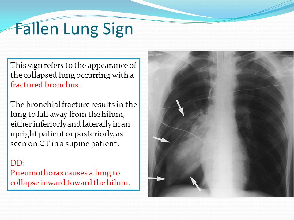 Flat waist Sign This sign refers to flattening of the contours of the aortic knob and adjacent main pulmonary artery.