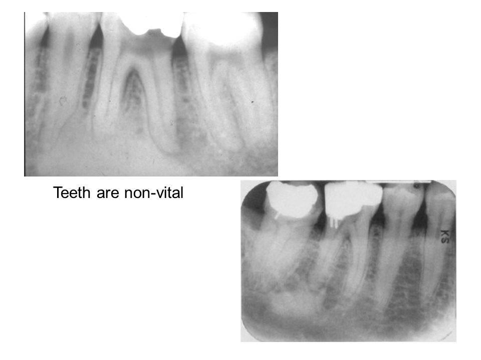 Two periapical films showing well defined radiopacity at apex of Mn 1st molar, exibits root tip absorption and loss of lamina dura and some widening of the PDL space.