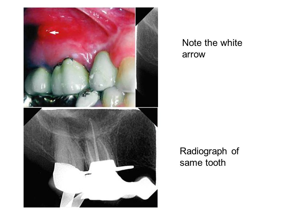 Note the white arrow Radiograph of same tooth