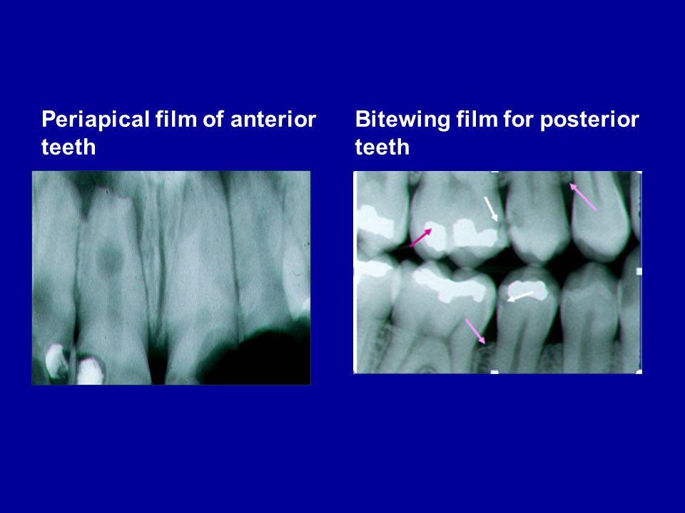 Periapical film of anterior teeth Bitewing film for posterior teeth