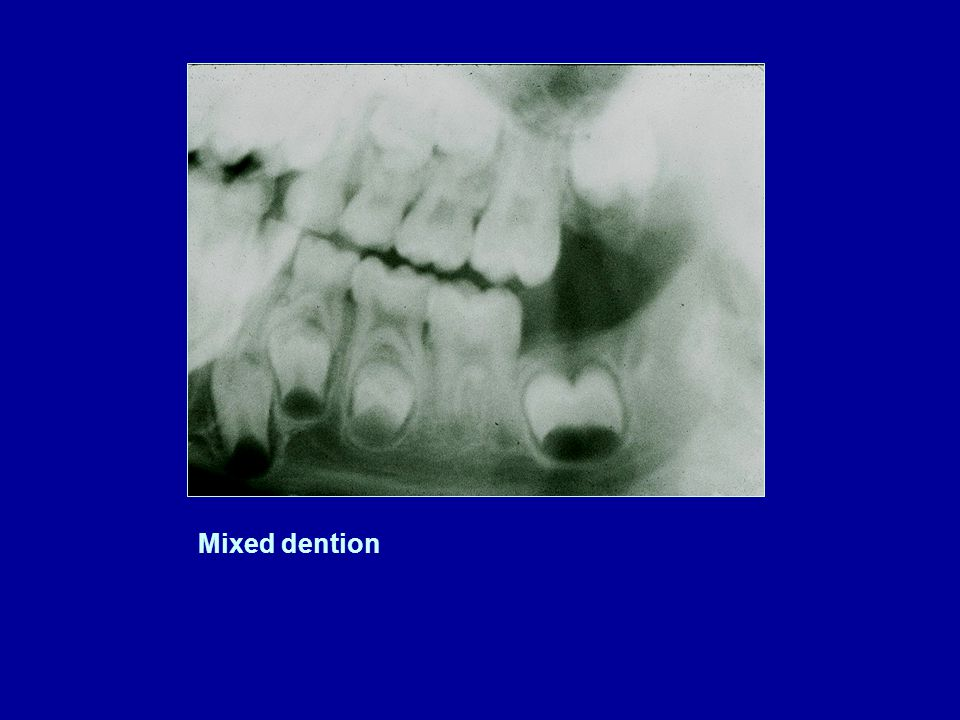 Mixed dention