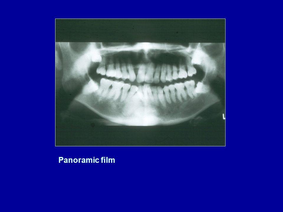 Panoramic film