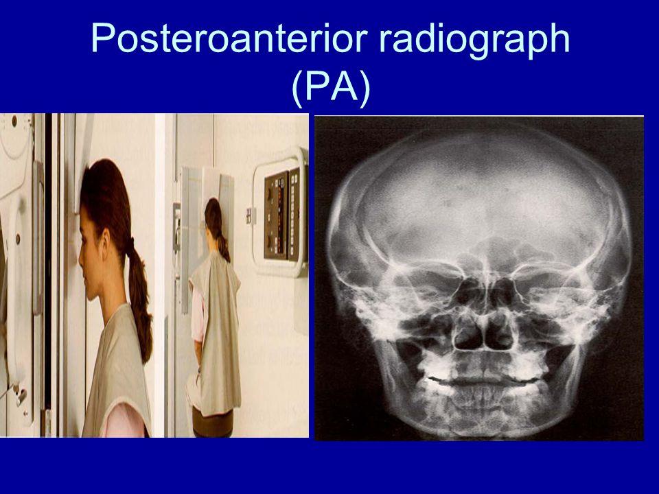 Posteroanterior radiograph (PA)