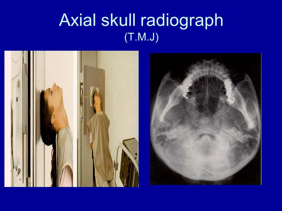 Axial skull radiograph (T.M.J)