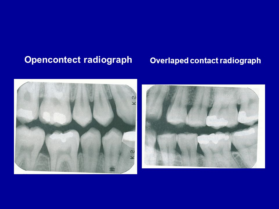 Opencontect radiograph Overlaped contact radiograph