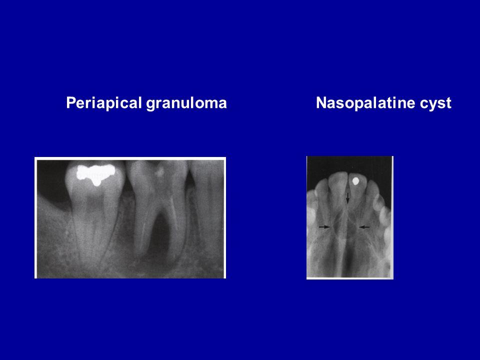 Periapical granulomaNasopalatine cyst