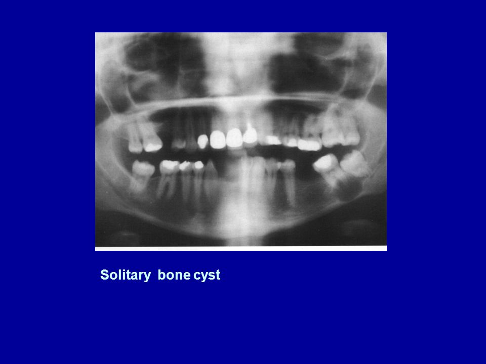 Solitary bone cyst