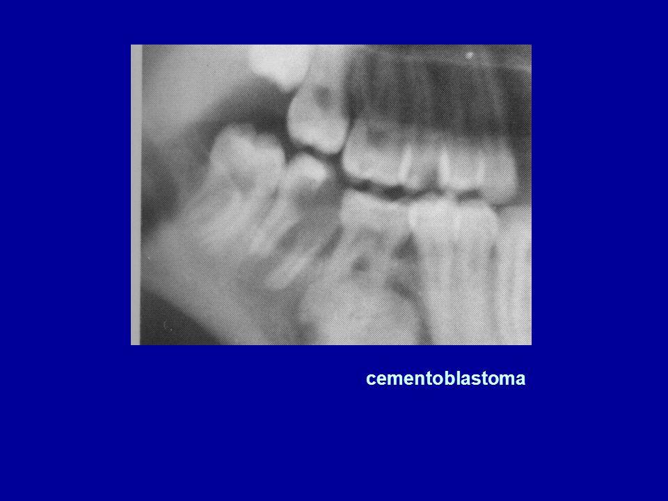 cementoblastoma