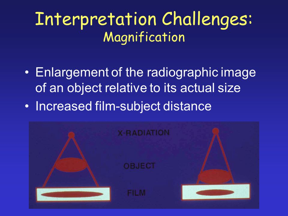 Interpretation Challenges: Magnification Enlargement of the radiographic image of an object relative to its actual size Increased film-subject distance