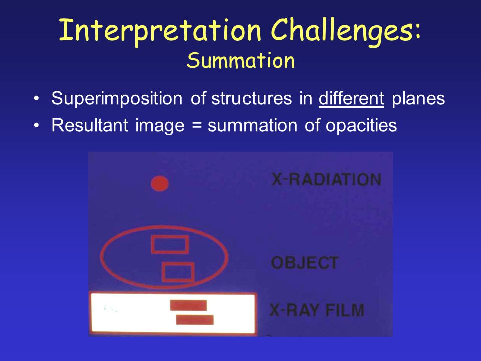 Interpretation Challenges: Summation Superimposition of structures in different planes Resultant image = summation of opacities