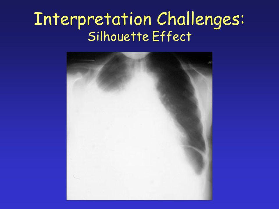 Interpretation Challenges: Silhouette Effect