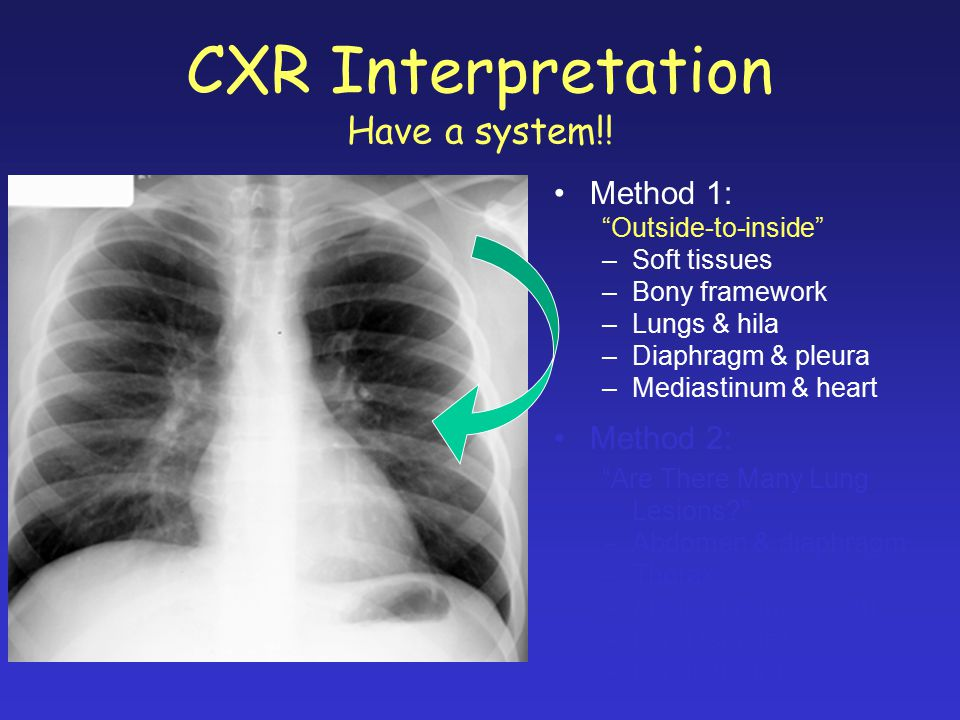 "CXR Interpretation Have a system!! Method 1: ""Outside-to-inside"" –Soft tissues –Bony framework –Lungs & hila –Diaphragm & pleura –Mediastinum & heart"