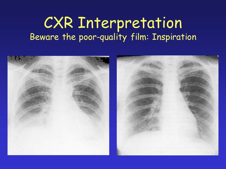 CXR Interpretation Beware the poor-quality film: Inspiration