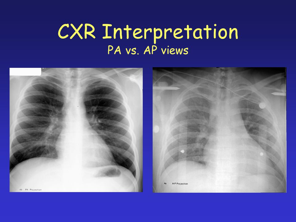 CXR Interpretation PA vs. AP views