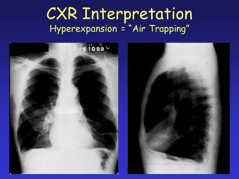 "CXR Interpretation Hyperexpansion = ""Air Trapping"""