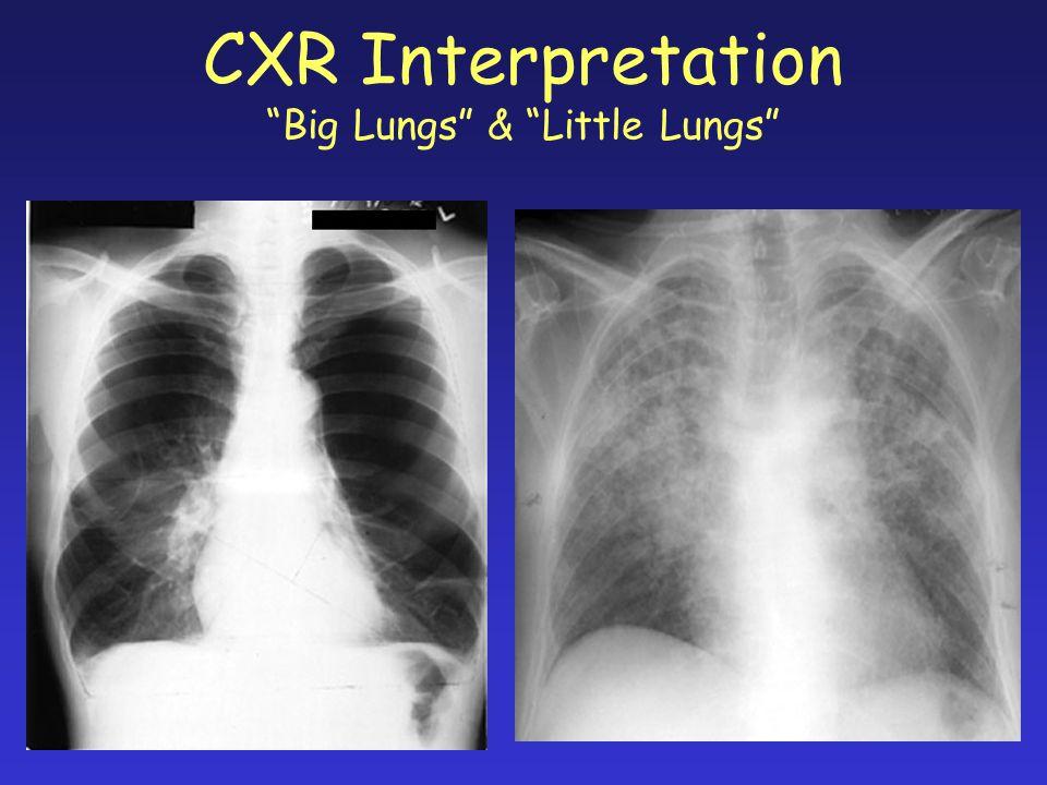 "CXR Interpretation ""Big Lungs"" & ""Little Lungs"""