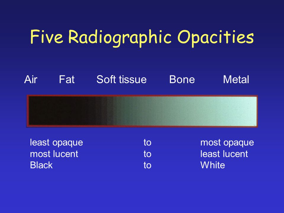 Five Radiographic Opacities Air Fat Soft tissue BoneMetal least opaquetomost opaque most lucenttoleast lucent BlacktoWhite