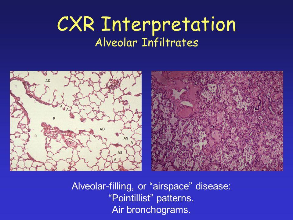 "CXR Interpretation Alveolar Infiltrates Alveolar-filling, or ""airspace"" disease: ""Pointillist"" patterns. Air bronchograms."