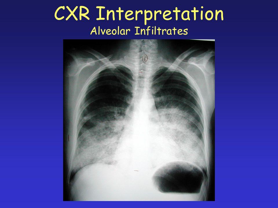 CXR Interpretation Alveolar Infiltrates