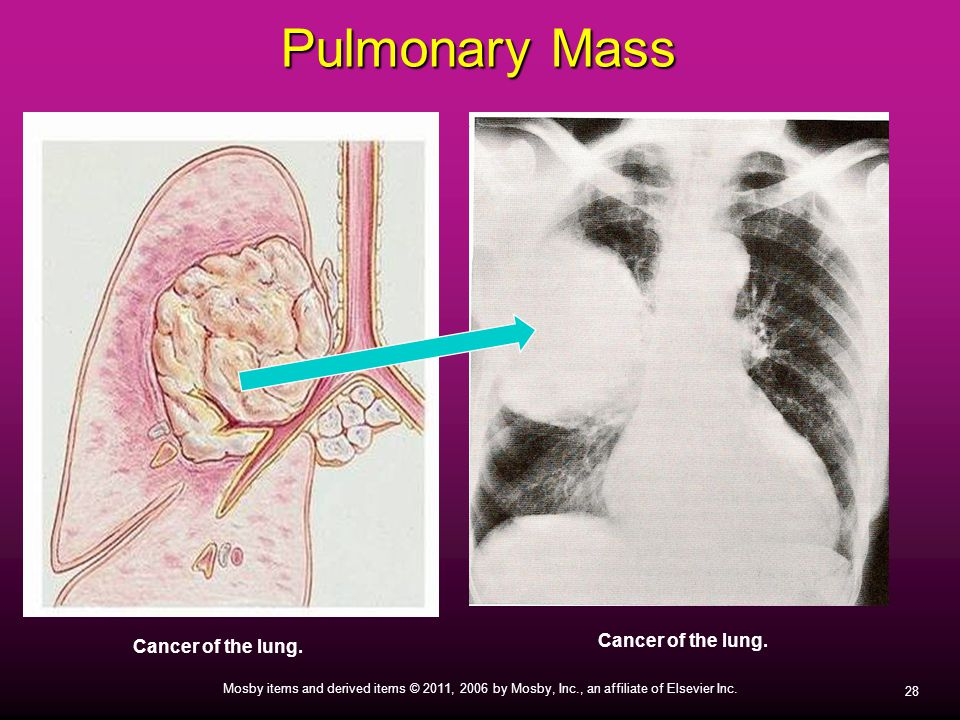 28 Mosby items and derived items © 2011, 2006 by Mosby, Inc., an affiliate of Elsevier Inc. Pulmonary Mass Cancer of the lung.