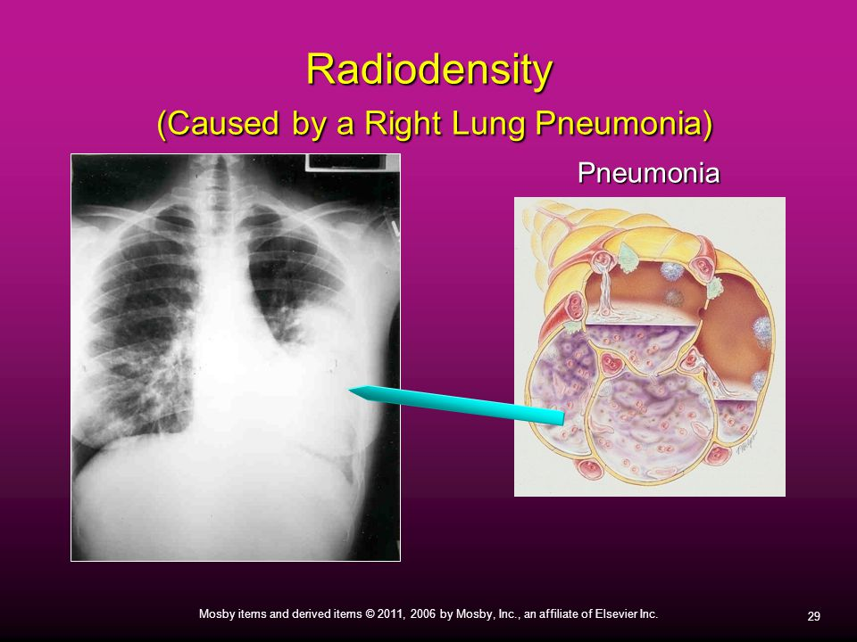 29 Mosby items and derived items © 2011, 2006 by Mosby, Inc., an affiliate of Elsevier Inc. Radiodensity (Caused by a Right Lung Pneumonia) Pneumonia