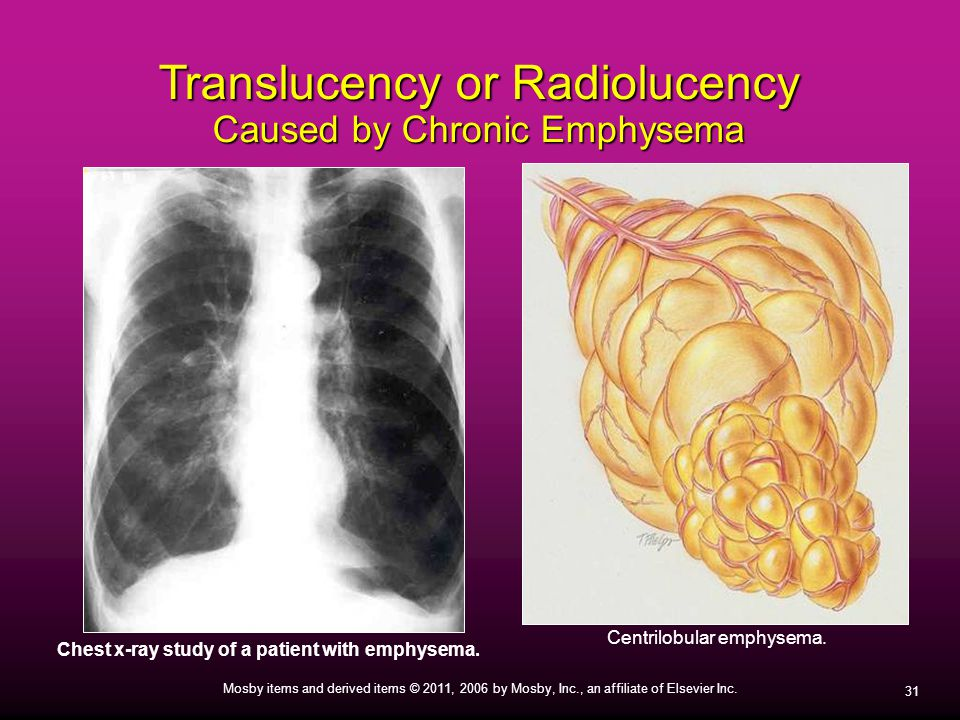 31 Mosby items and derived items © 2011, 2006 by Mosby, Inc., an affiliate of Elsevier Inc. Translucency or Radiolucency Caused by Chronic Emphysema C
