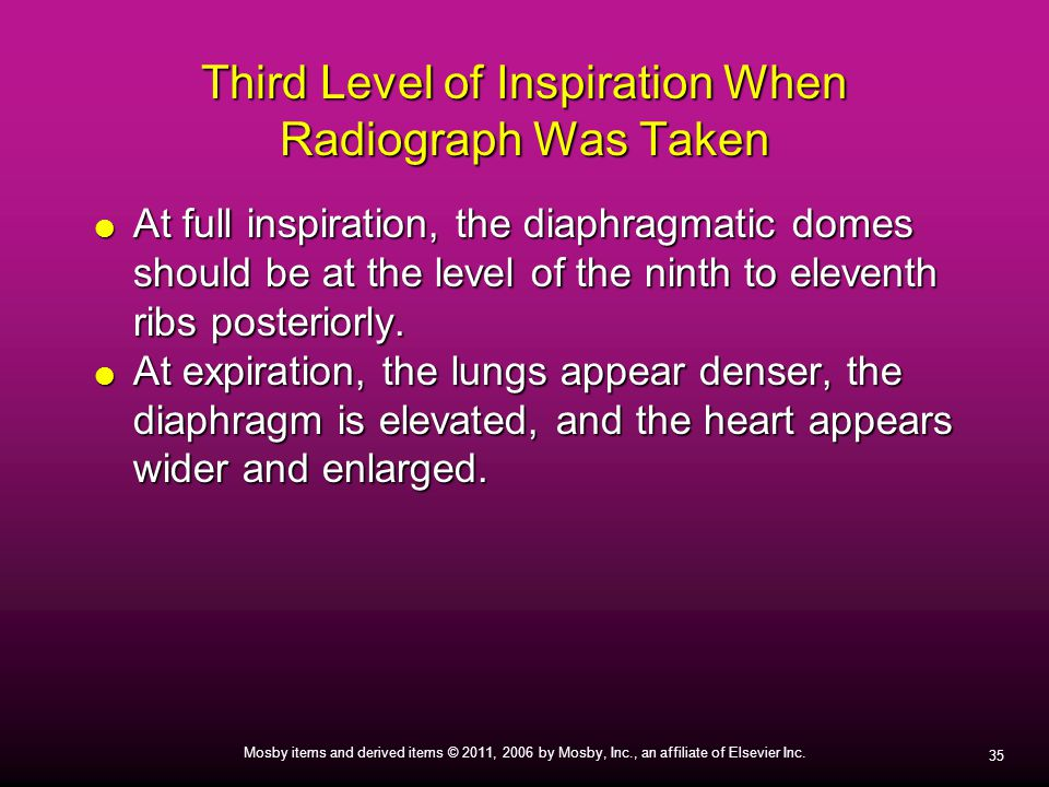 35 Mosby items and derived items © 2011, 2006 by Mosby, Inc., an affiliate of Elsevier Inc. Third Level of Inspiration When Radiograph Was Taken  At