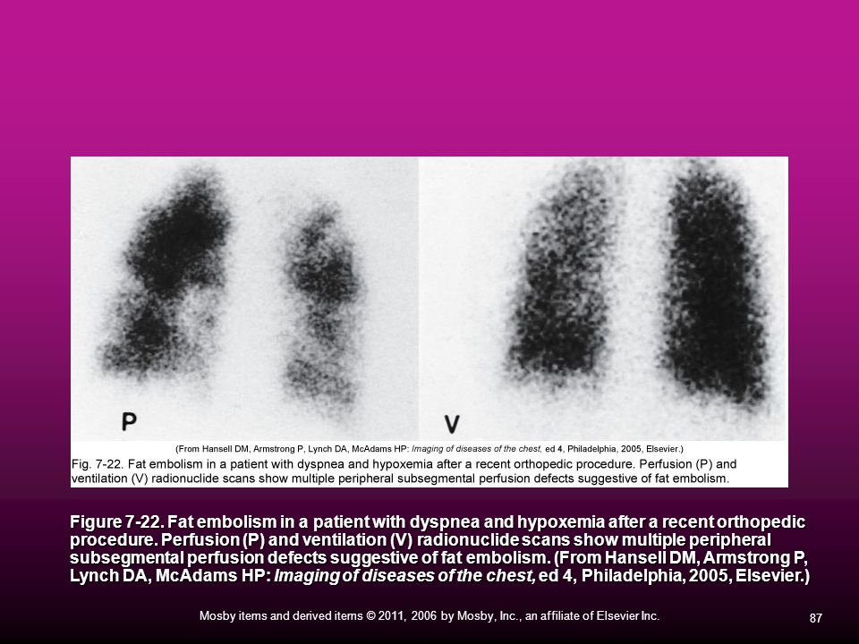87 Mosby items and derived items © 2011, 2006 by Mosby, Inc., an affiliate of Elsevier Inc. Figure 7-22. Fat embolism in a patient with dyspnea and hy