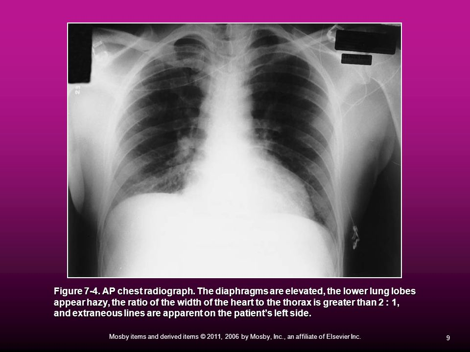 20 Mosby items and derived items © 2011, 2006 by Mosby, Inc., an affiliate of Elsevier Inc.Cavity Lung abscess with cavities Radiograph of cavity Lung abscess with air-fluid cavity.