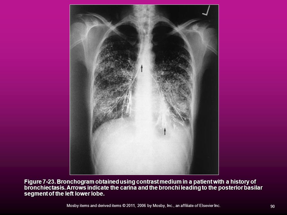 90 Mosby items and derived items © 2011, 2006 by Mosby, Inc., an affiliate of Elsevier Inc. Figure 7-23. Bronchogram obtained using contrast medium in