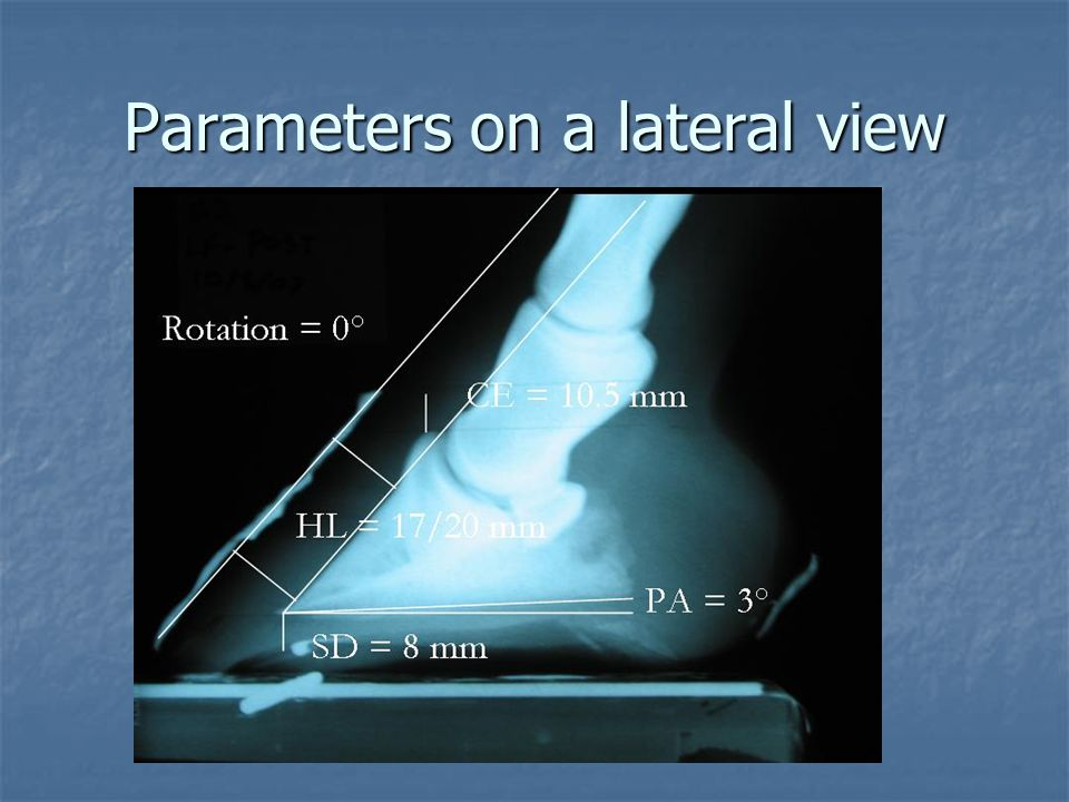 Parameters on a lateral view