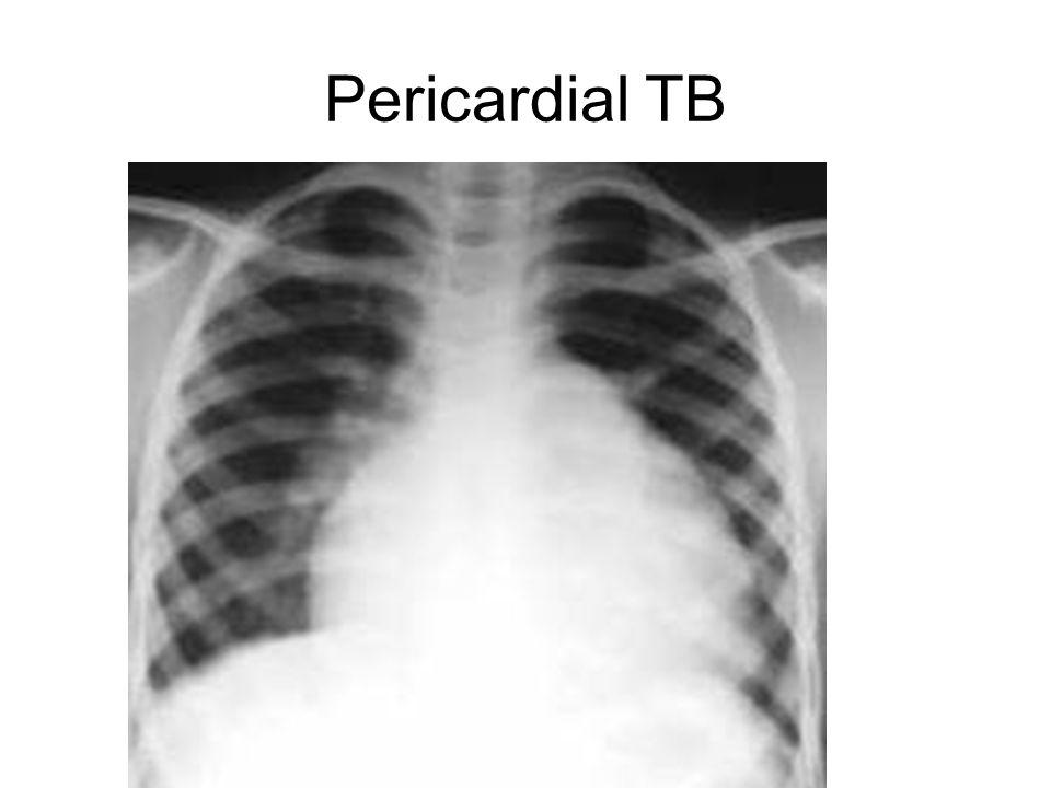 Pericardial TB