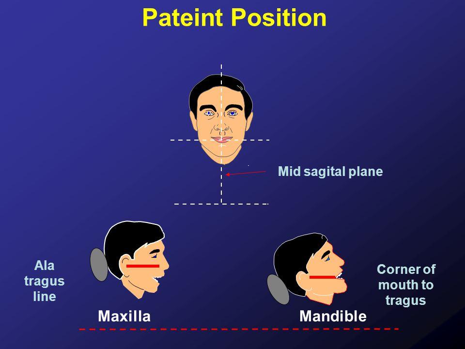 MaxillaMandible Pateint Position Mid sagital plane Ala tragus line Corner of mouth to tragus