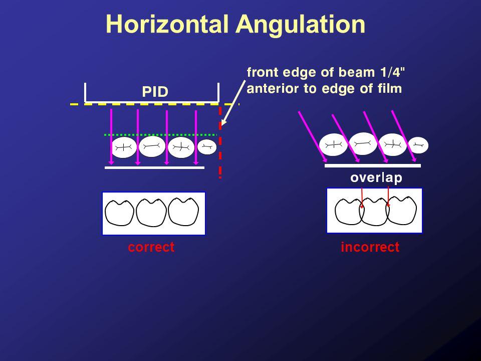 Horizontal Angulation