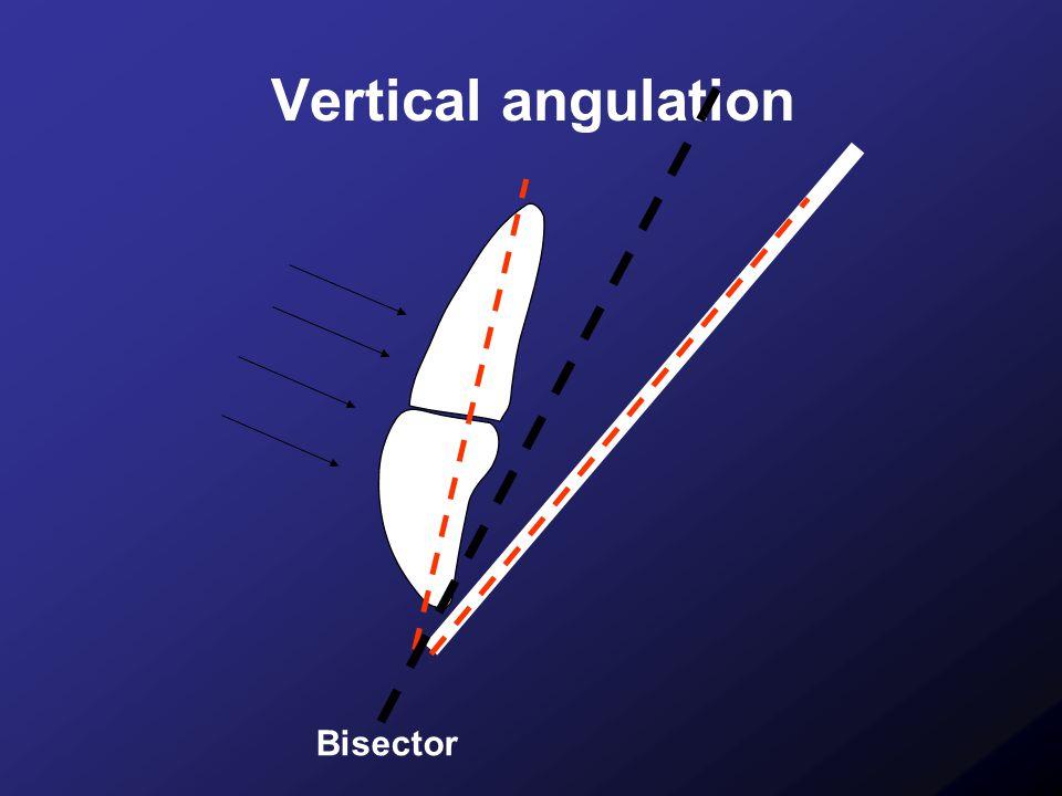 Vertical angulation Bisector