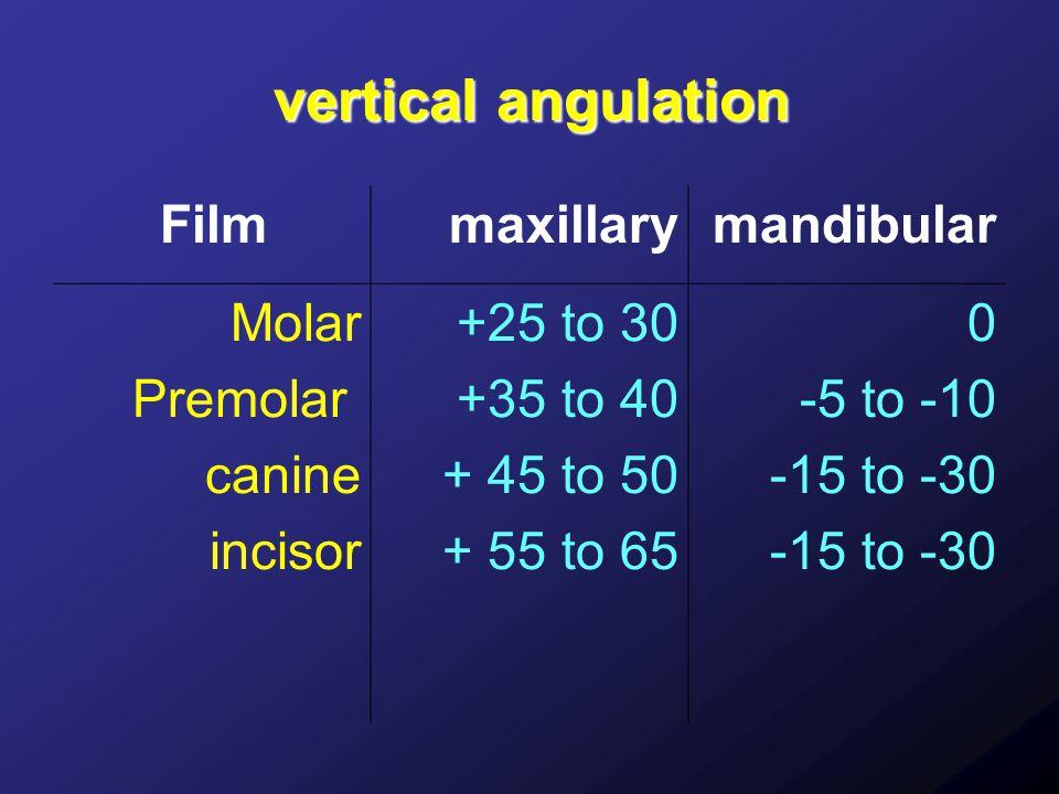 vertical angulation Filmmaxillarymandibular Molar Premolar canine incisor +25 to 30 +35 to 40 + 45 to 50 + 55 to 65 0 -5 to -10 -15 to -30