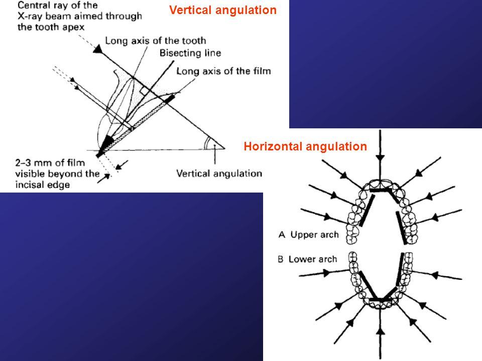 Vertical angulation Horizontal angulation