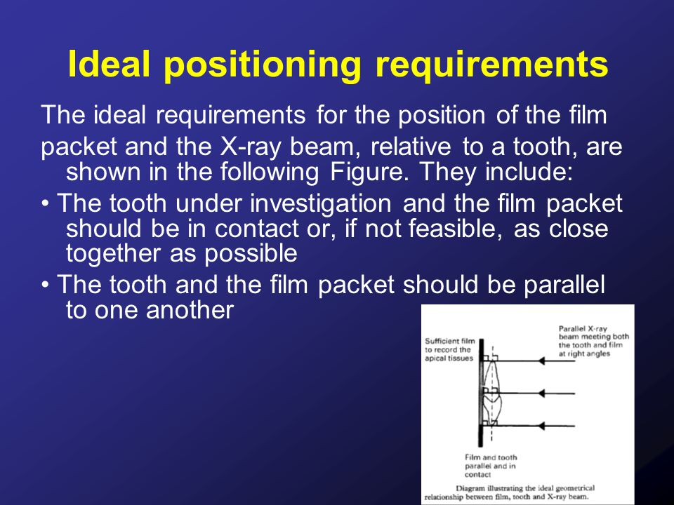Ideal positioning requirements The ideal requirements for the position of the film packet and the X-ray beam, relative to a tooth, are shown in the fo