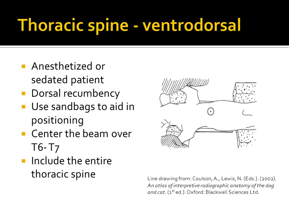  Anesthetized or sedated patient  Dorsal recumbency  Use sandbags to aid in positioning  Center the beam over T6- T7  Include the entire thoracic spine Line drawing from: Coulson, A., Lewis, N.