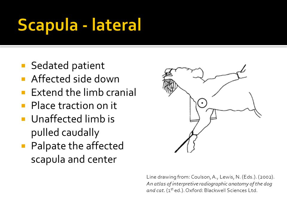  Sedated patient  Affected side down  Extend the limb cranial  Place traction on it  Unaffected limb is pulled caudally  Palpate the affected scapula and center Line drawing from: Coulson, A., Lewis, N.