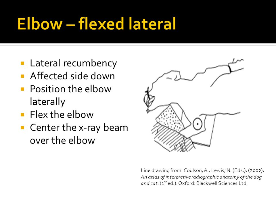  Lateral recumbency  Affected side down  Position the elbow laterally  Flex the elbow  Center the x-ray beam over the elbow Line drawing from: Coulson, A., Lewis, N.