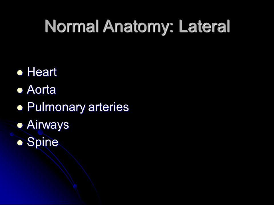 Normal Anatomy: Lateral Heart Heart Aorta Aorta Pulmonary arteries Pulmonary arteries Airways Airways Spine Spine