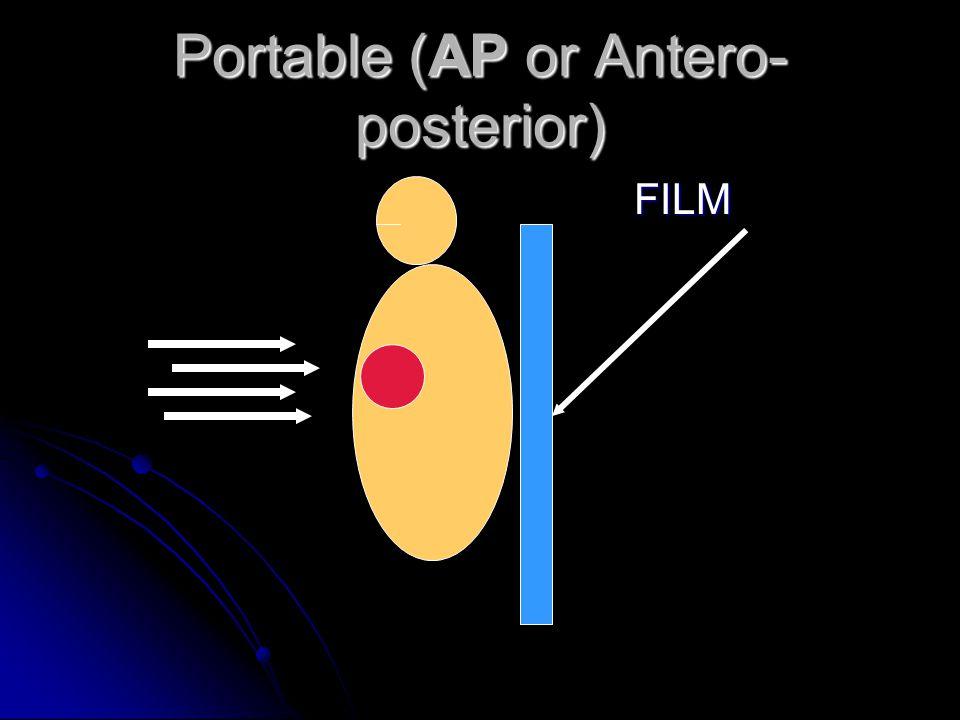 Portable (AP or Antero- posterior) FILM