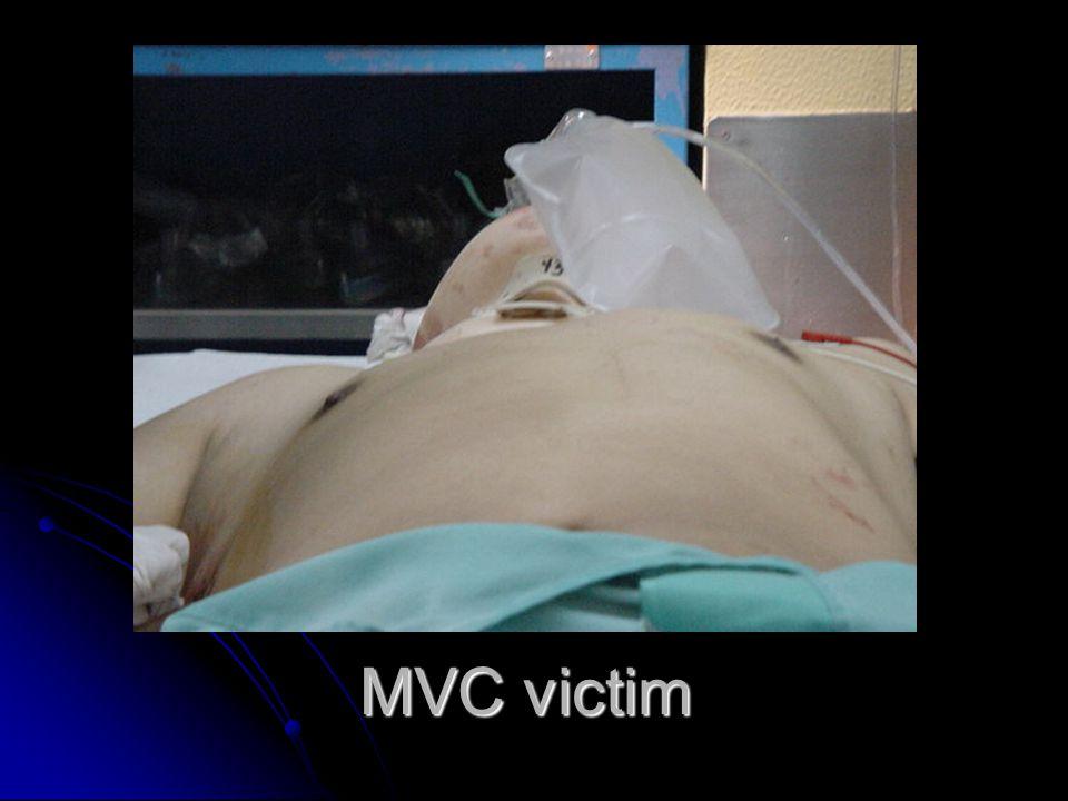 MVC victim