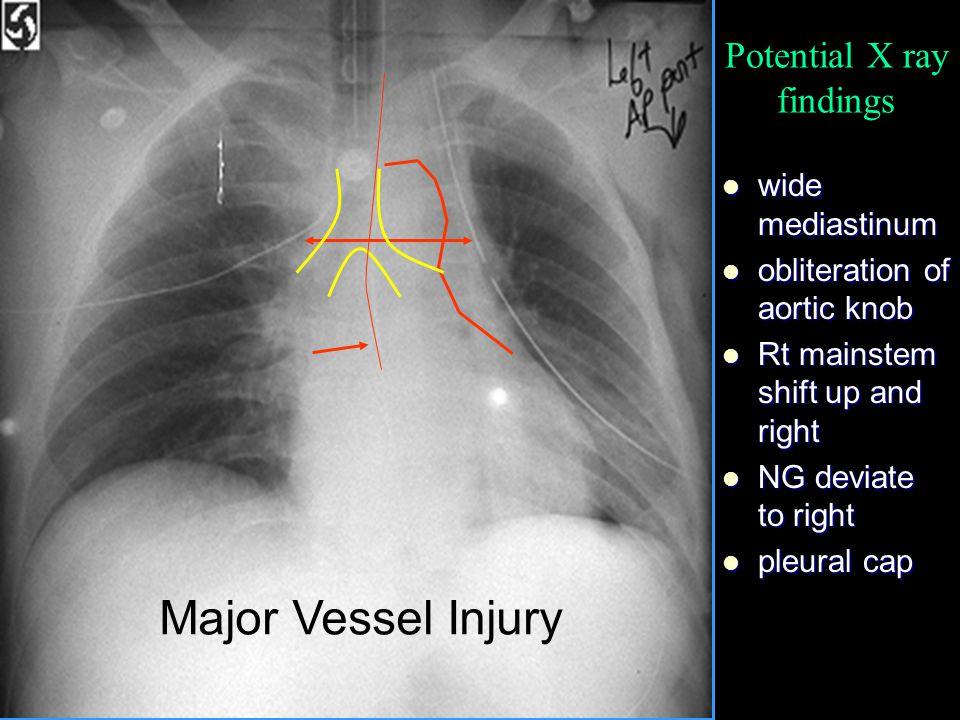 wide mediastinum wide mediastinum obliteration of aortic knob obliteration of aortic knob Rt mainstem shift up and right Rt mainstem shift up and righ