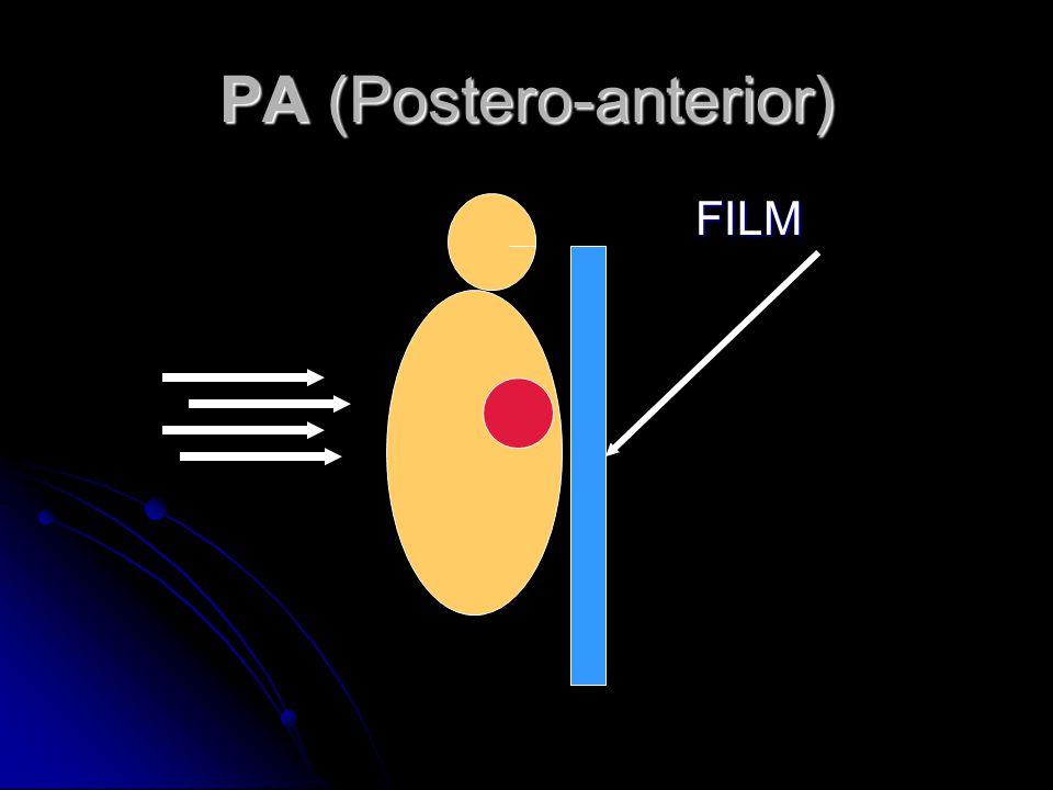 PA (Postero-anterior) FILM